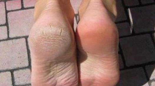 corne du pied